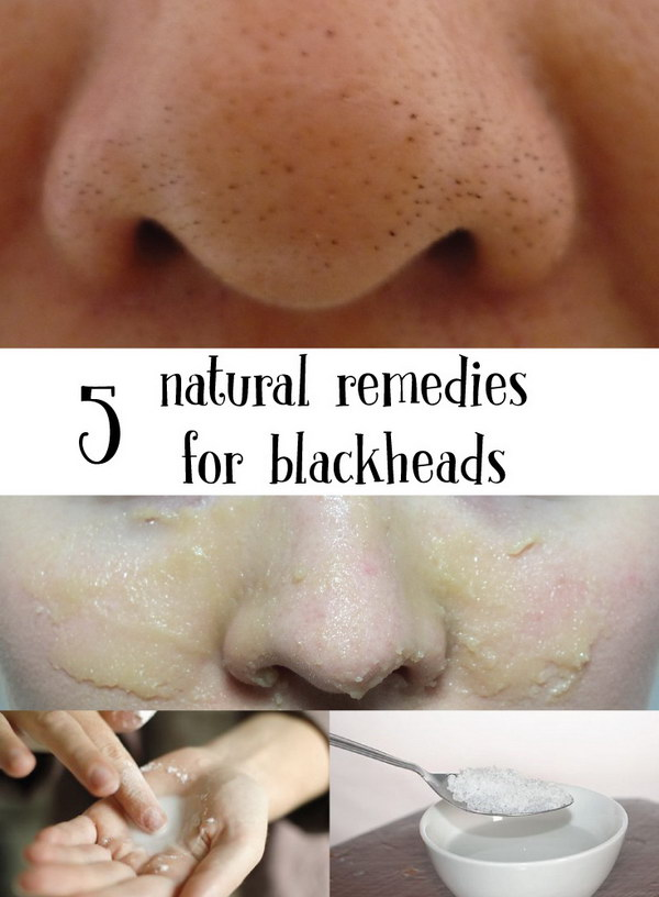 5 Natural Remedies for Blackheads.