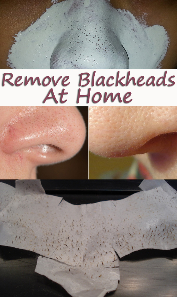 Remove Blackheads with Egg Whites, Honey or Clay.
