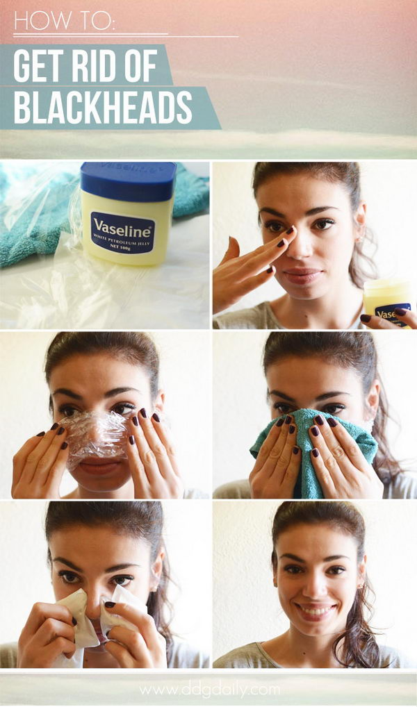 Get Rid Of Blackheads With Plastic Wrap.